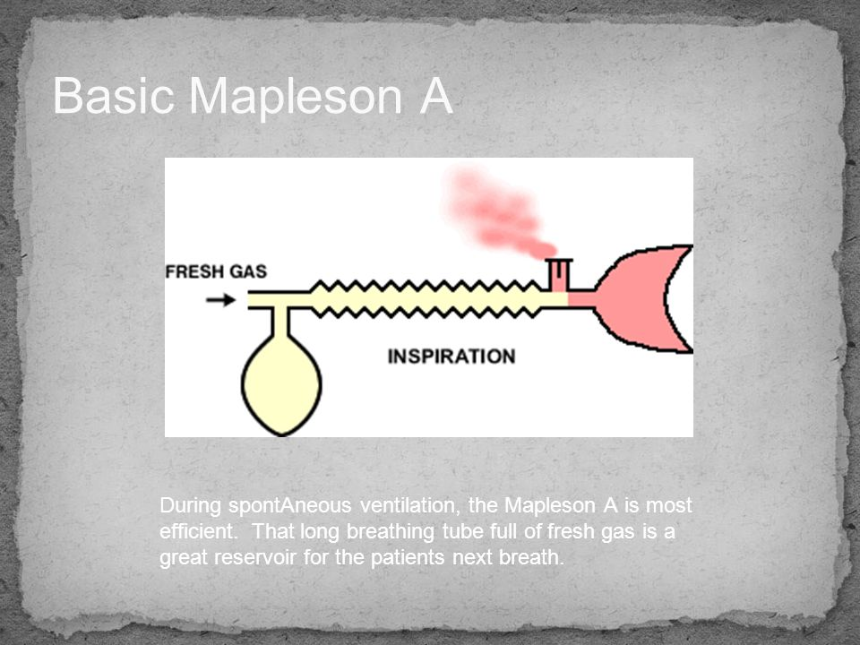 Basic Mapleson A