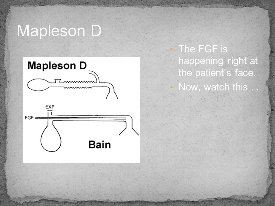 Mapleson D The FGF is happening right at the patient's face.