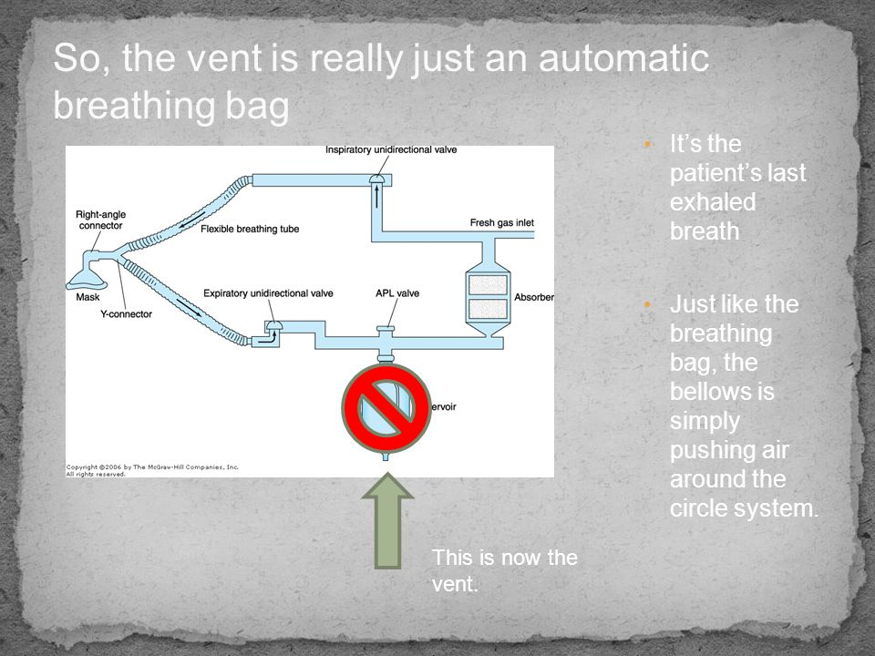 So, the vent is really just an automatic breathing bag