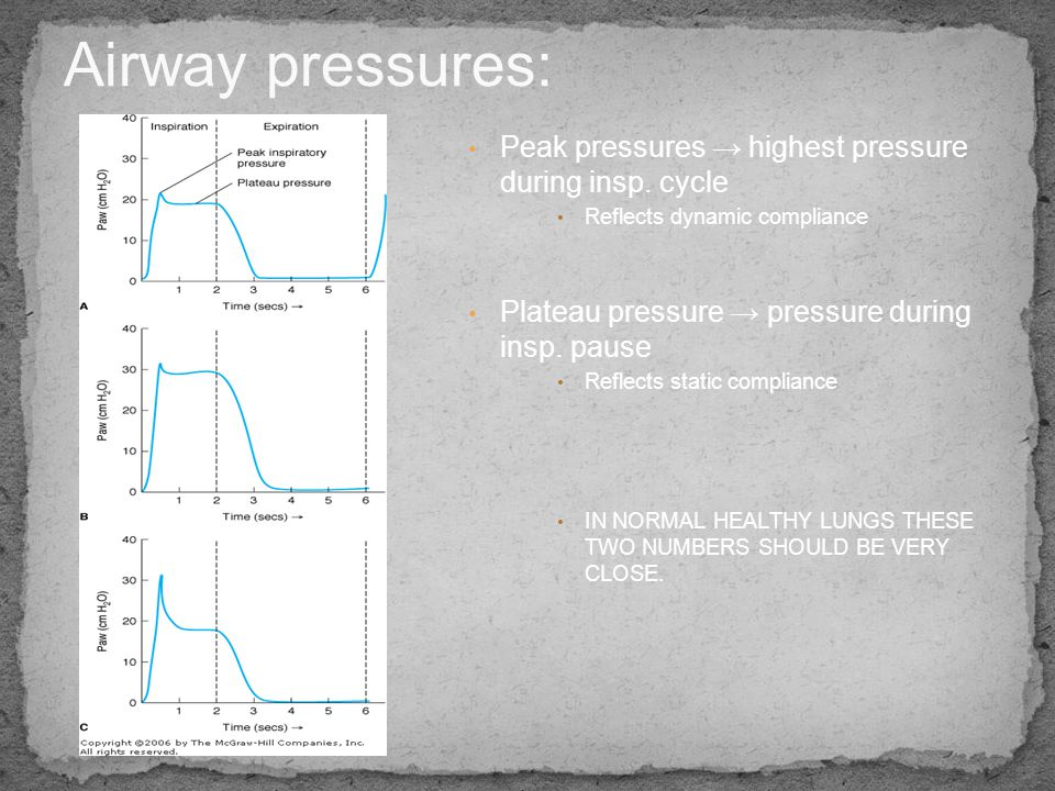 Airway pressures: Peak pressures → highest pressure during insp. cycle