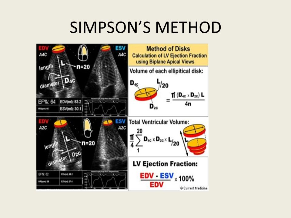 SIMPSON'S METHOD