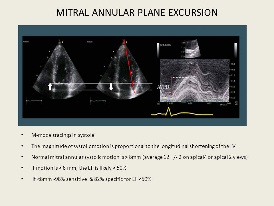 MITRAL ANNULAR PLANE EXCURSION
