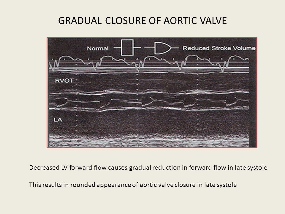GRADUAL CLOSURE OF AORTIC VALVE