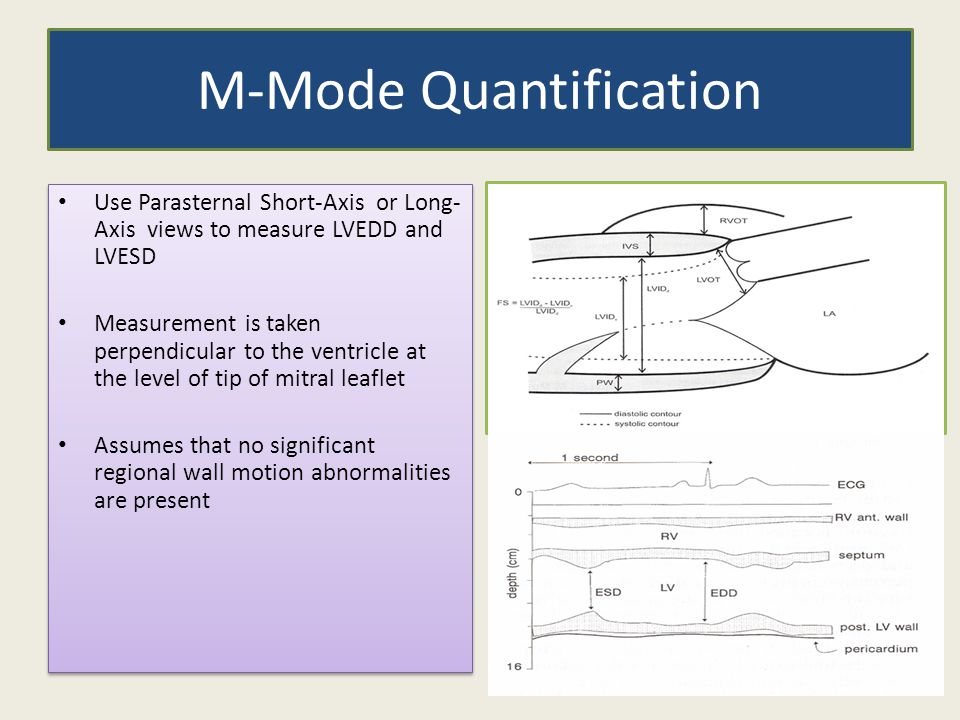 M-Mode Quantification