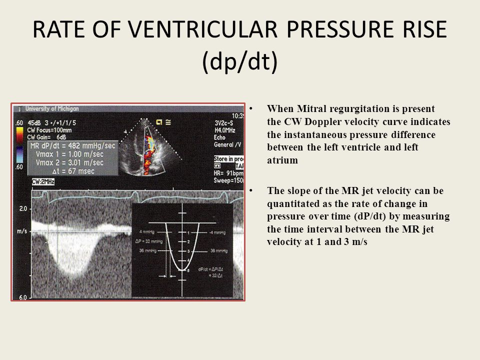 RATE OF VENTRICULAR PRESSURE RISE (dp/dt)