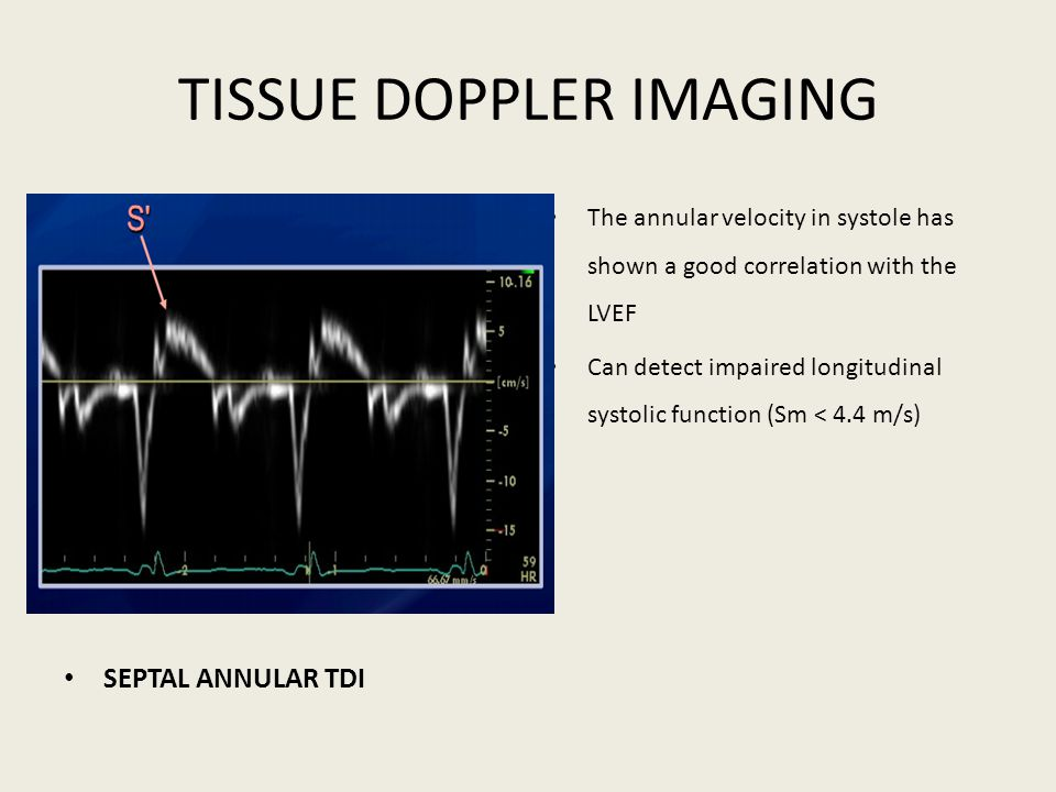 TISSUE DOPPLER IMAGING