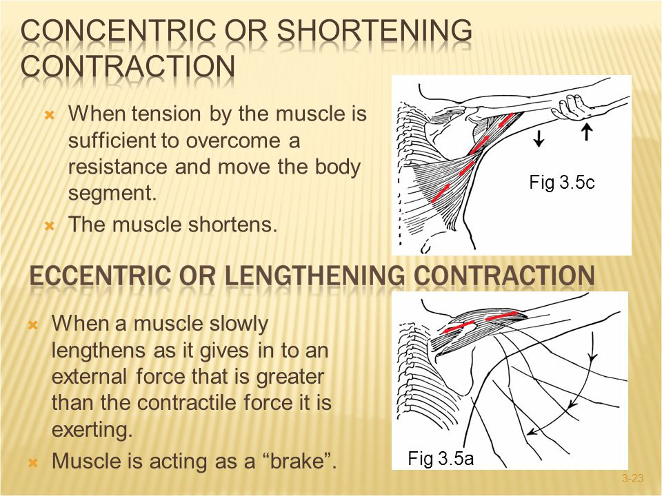 Concentric or Shortening Contraction