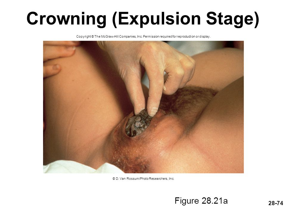Crowning (Expulsion Stage)