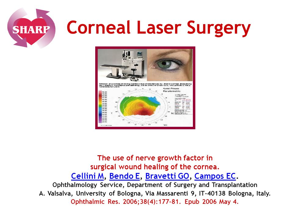 Corneal Laser Surgery Cellini M, Bendo E, Bravetti GO, Campos EC.