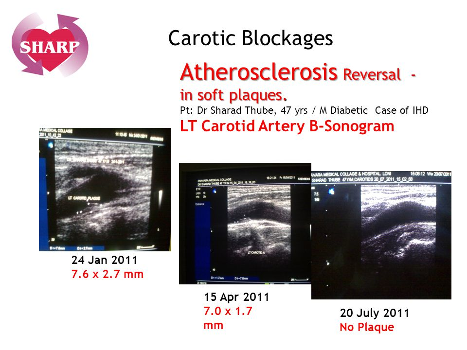 Carotic Blockages Atherosclerosis Reversal - in soft plaques. Pt: Dr Sharad Thube, 47 yrs / M Diabetic Case of IHD LT Carotid Artery B-Sonogram.
