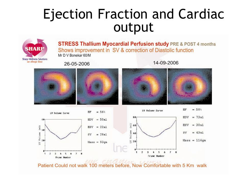 Ejection Fraction and Cardiac output
