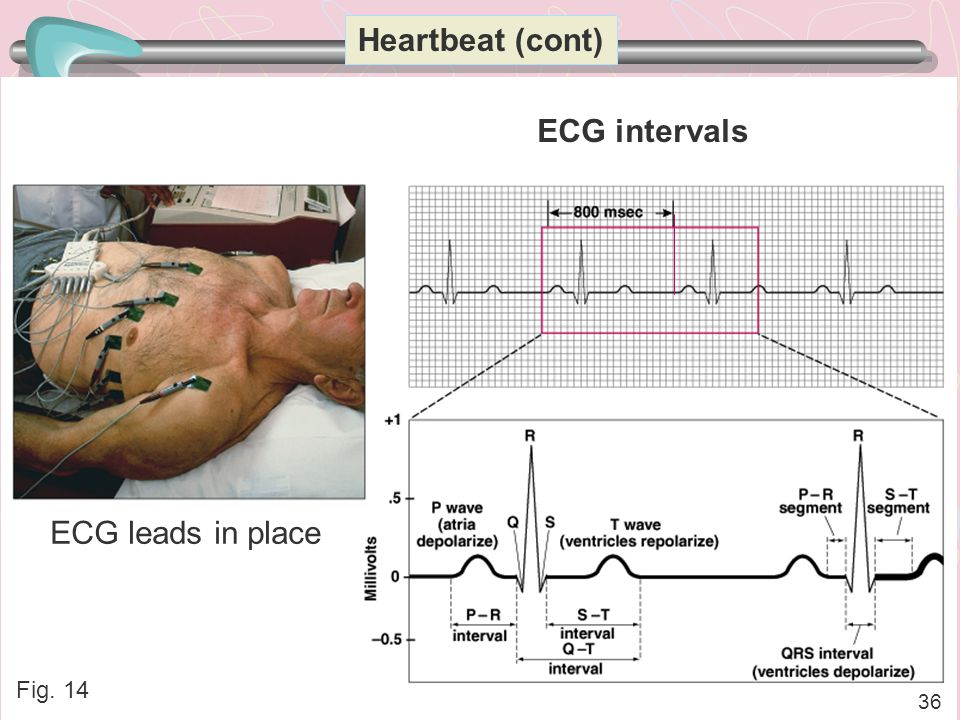 Heartbeat (cont) ECG intervals ECG leads in place Fig. 14 36