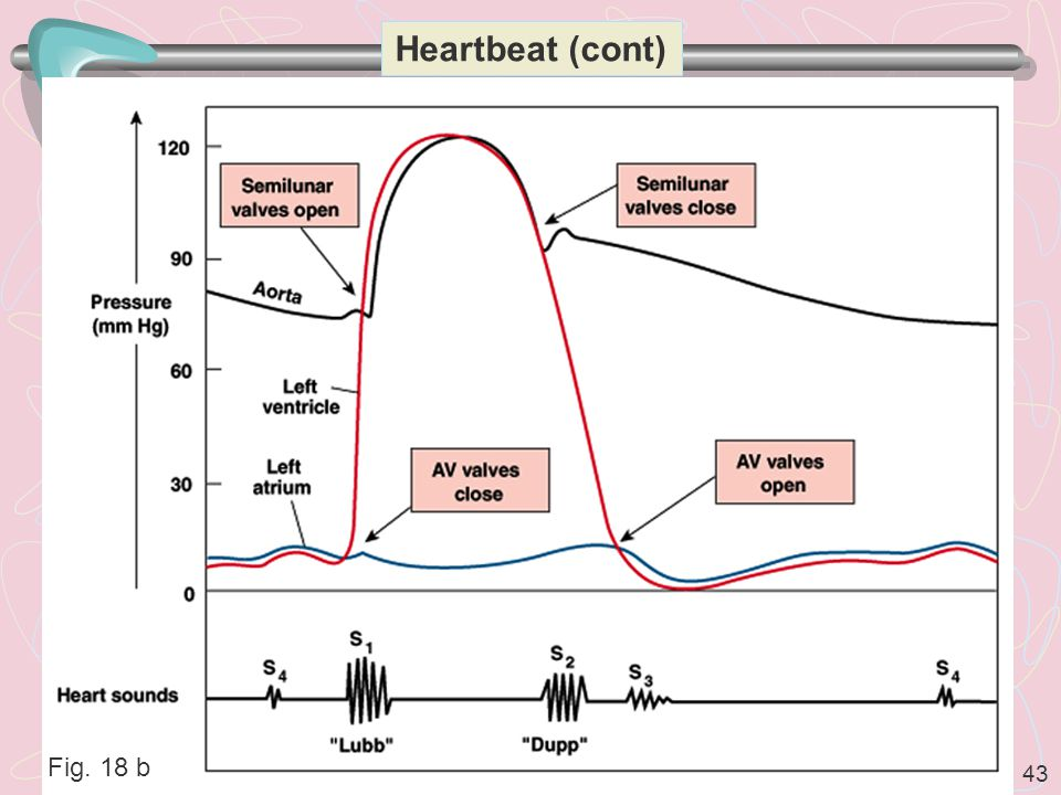 Heartbeat (cont) Fig. 18 b