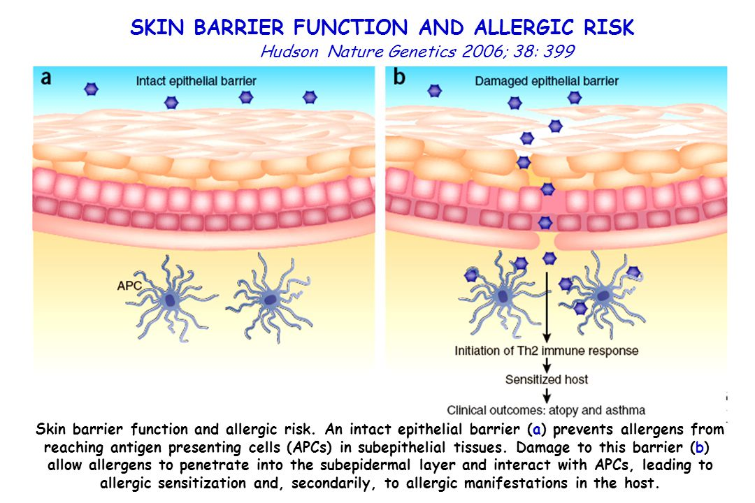 SKIN BARRIER FUNCTION AND ALLERGIC RISK
