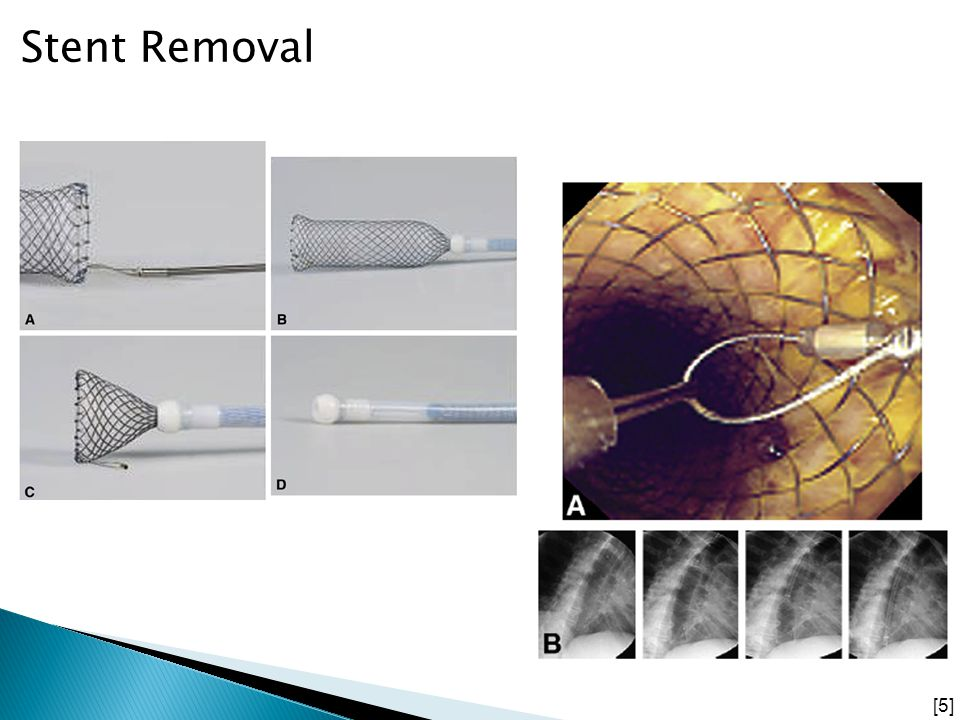 Stent Removal Also can look for any immediate re-bleeding Through endoscopic procedure and a foreign body retractor.
