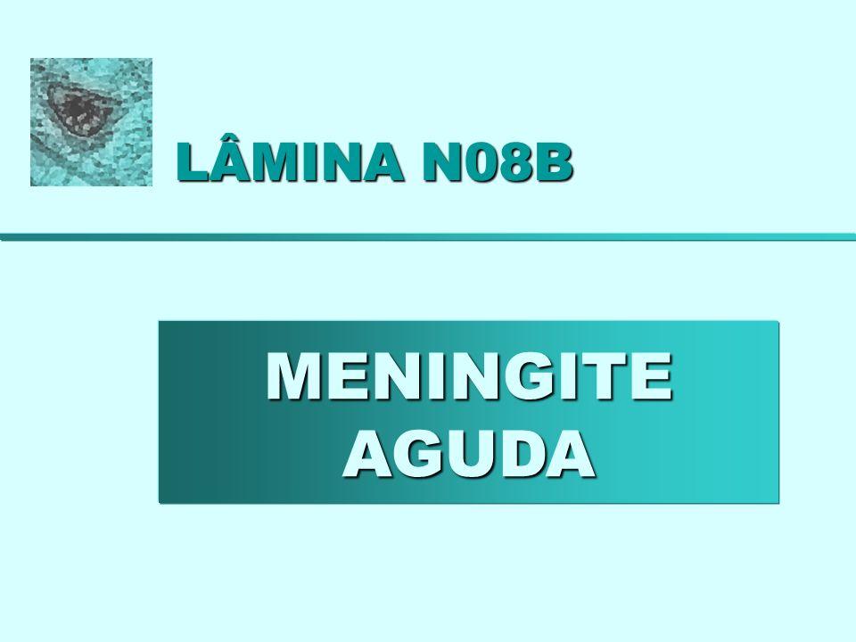 LÂMINA N08B MENINGITE AGUDA