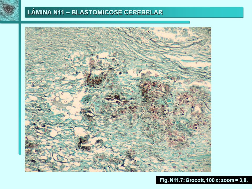 LÂMINA N11 – BLASTOMICOSE CEREBELAR