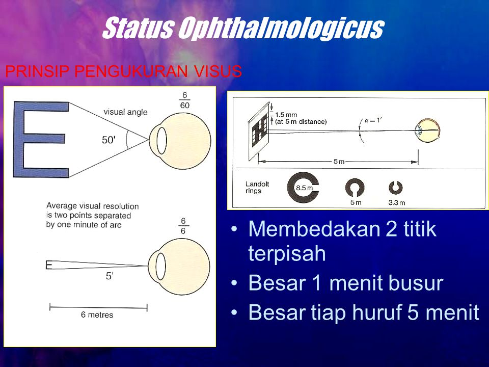 Status Ophthalmologicus