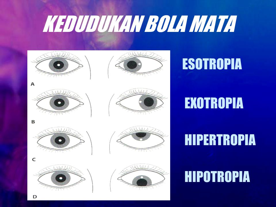 KEDUDUKAN BOLA MATA ESOTROPIA EXOTROPIA HIPERTROPIA HIPOTROPIA