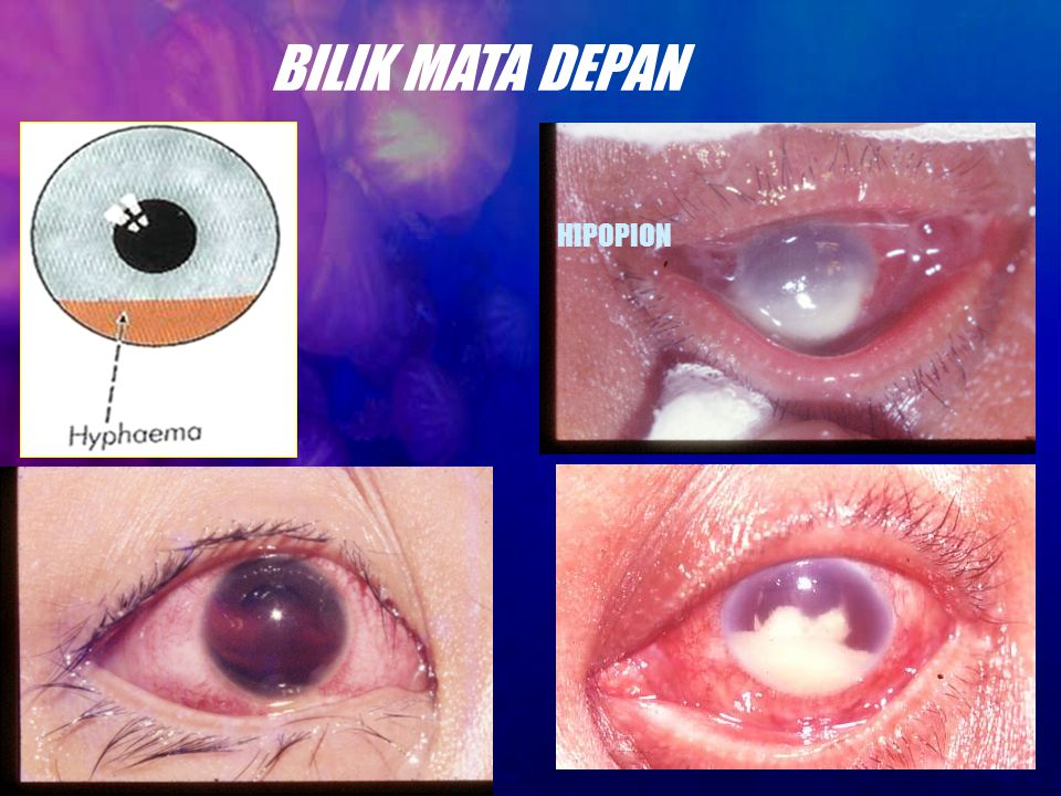 BILIK MATA DEPAN HIPOPION