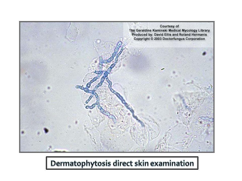 Dermatophytosis direct skin examination
