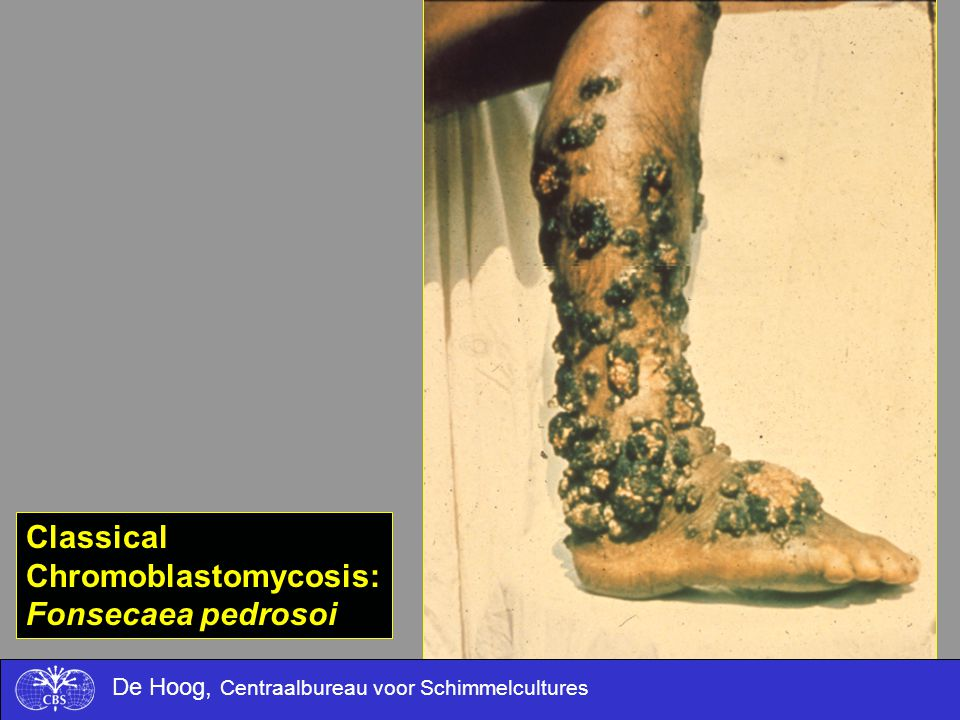 Chromoblastomycosis: Fonsecaea pedrosoi