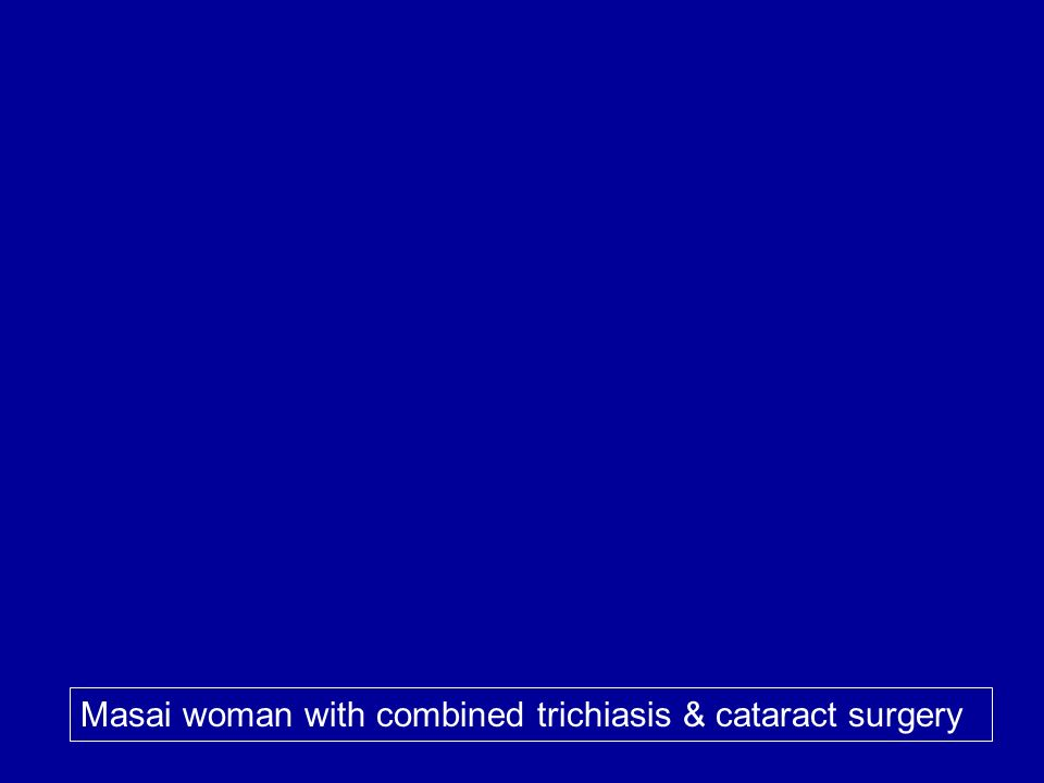 Masai woman with combined trichiasis & cataract surgery