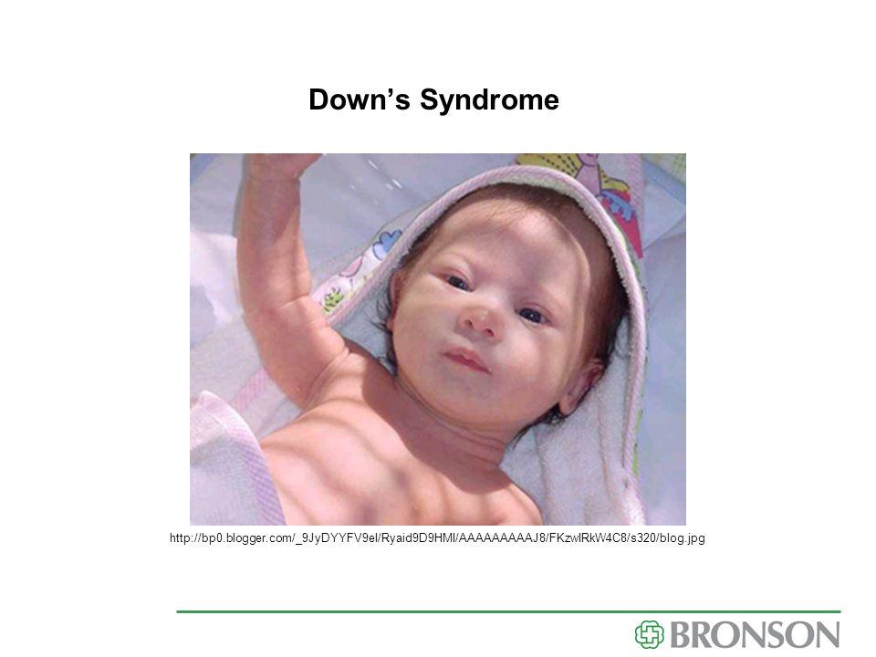 Down's Syndrome http://bp0.blogger.com/_9JyDYYFV9eI/Ryaid9D9HMI/AAAAAAAAAJ8/FKzwIRkW4C8/s320/blog.jpg.
