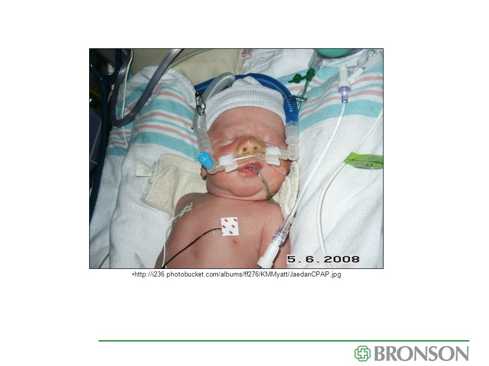 Shows CPAP, feeding tube, monitor leads