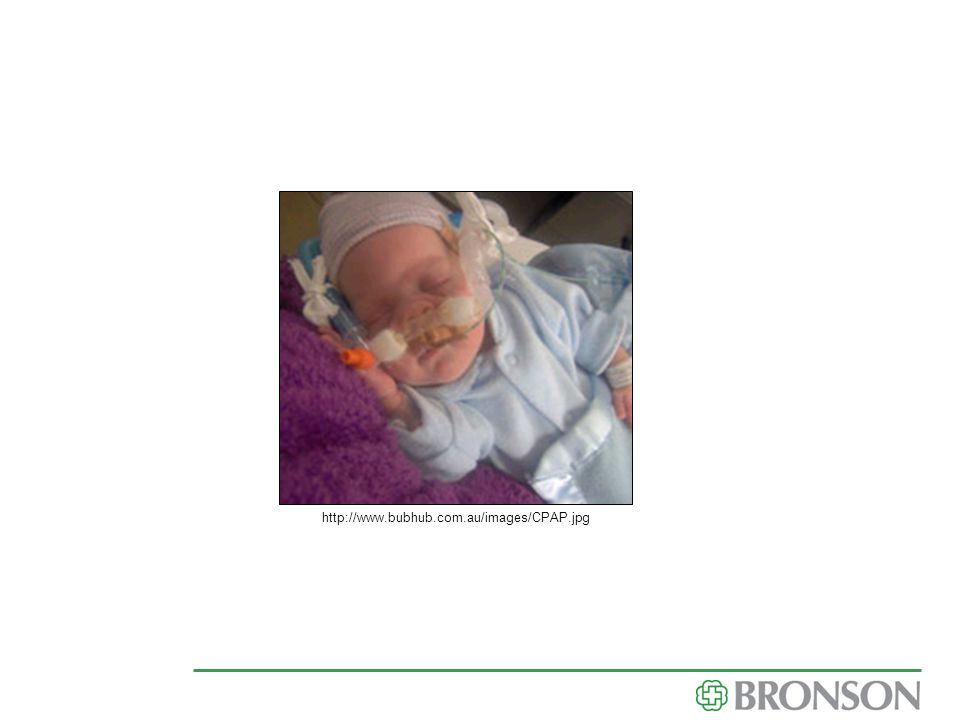 http://www.bubhub.com.au/images/CPAP.jpg common CPAP...cont post airway pressure...keeping lungs open to help baby breathe better.
