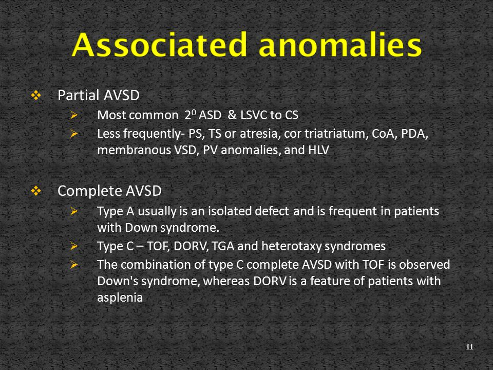 Associated anomalies Partial AVSD Complete AVSD