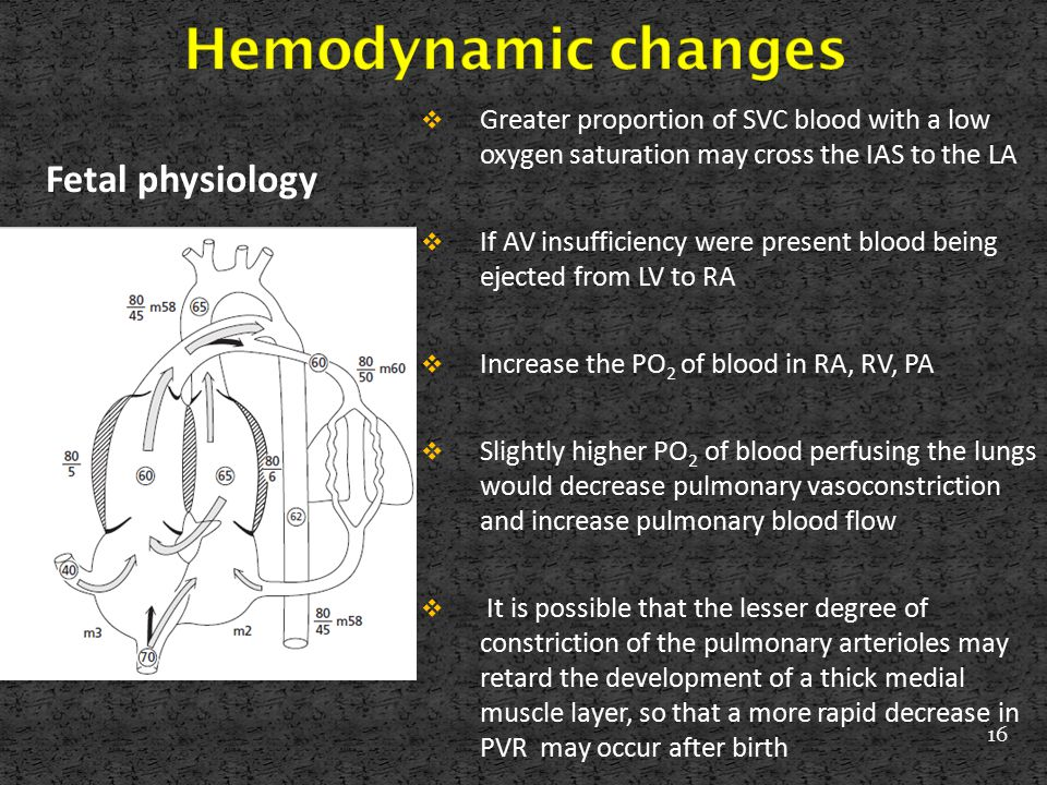 Hemodynamic changes Fetal physiology
