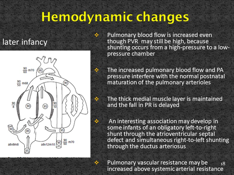 Hemodynamic changes later infancy