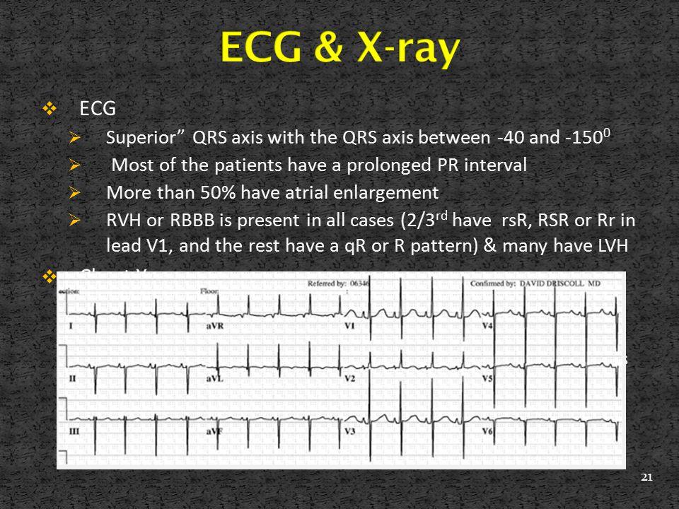 ECG & X-ray ECG Chest X-ray