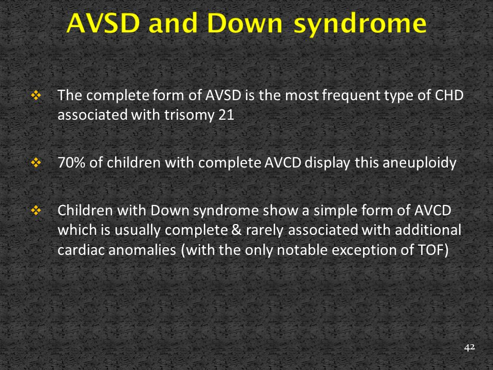 AVSD and Down syndrome The complete form of AVSD is the most frequent type of CHD associated with trisomy 21.