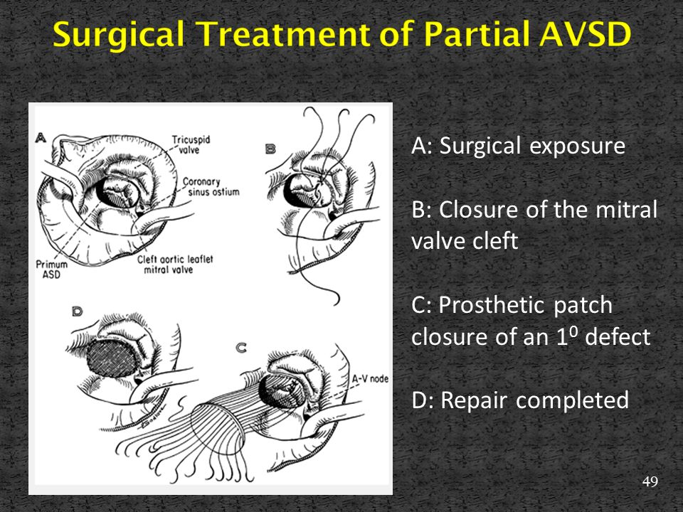 Surgical Treatment of Partial AVSD