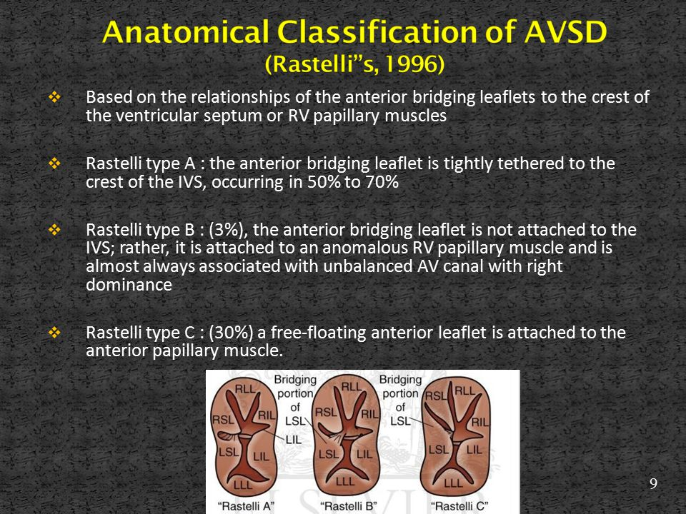 Anatomical Classification of AVSD (Rastelli s, 1996)