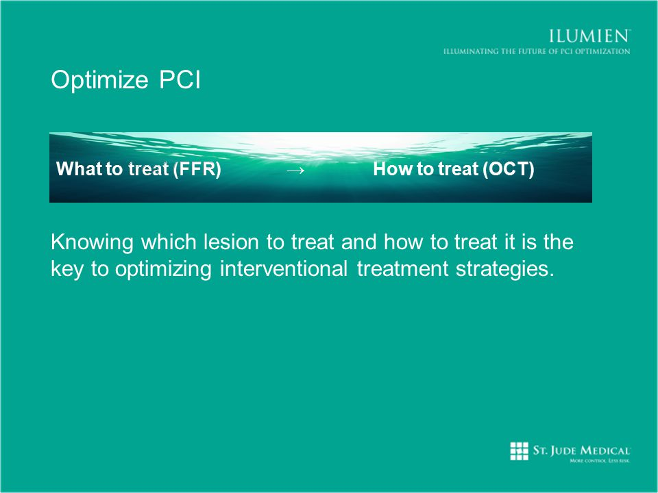 Optimize PCI What to treat (FFR) → How to treat (OCT)