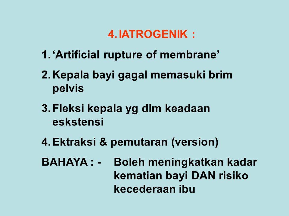 IATROGENIK : 'Artificial rupture of membrane' Kepala bayi gagal memasuki brim pelvis. Fleksi kepala yg dlm keadaan eskstensi.