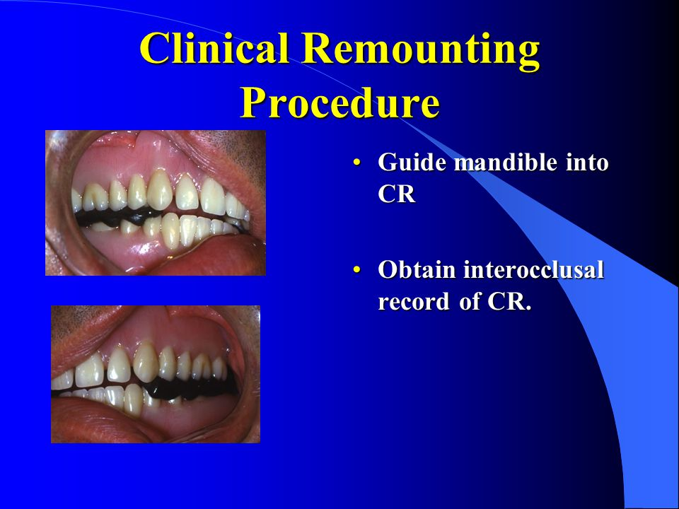 Clinical Remounting Procedure