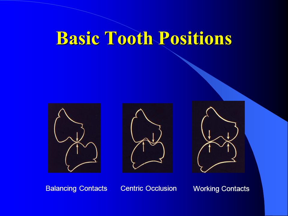 Basic Tooth Positions Balancing Contacts Centric Occlusion