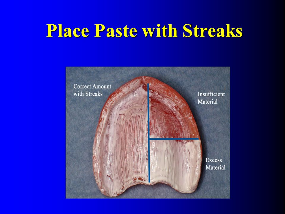 Place Paste with Streaks