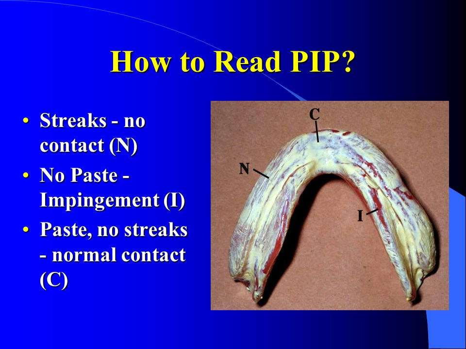 How to Read PIP Streaks - no contact (N) No Paste - Impingement (I)
