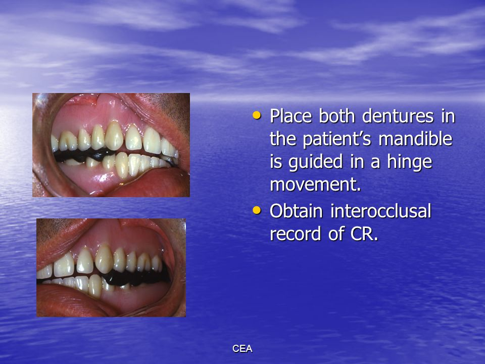 Obtain interocclusal record of CR.