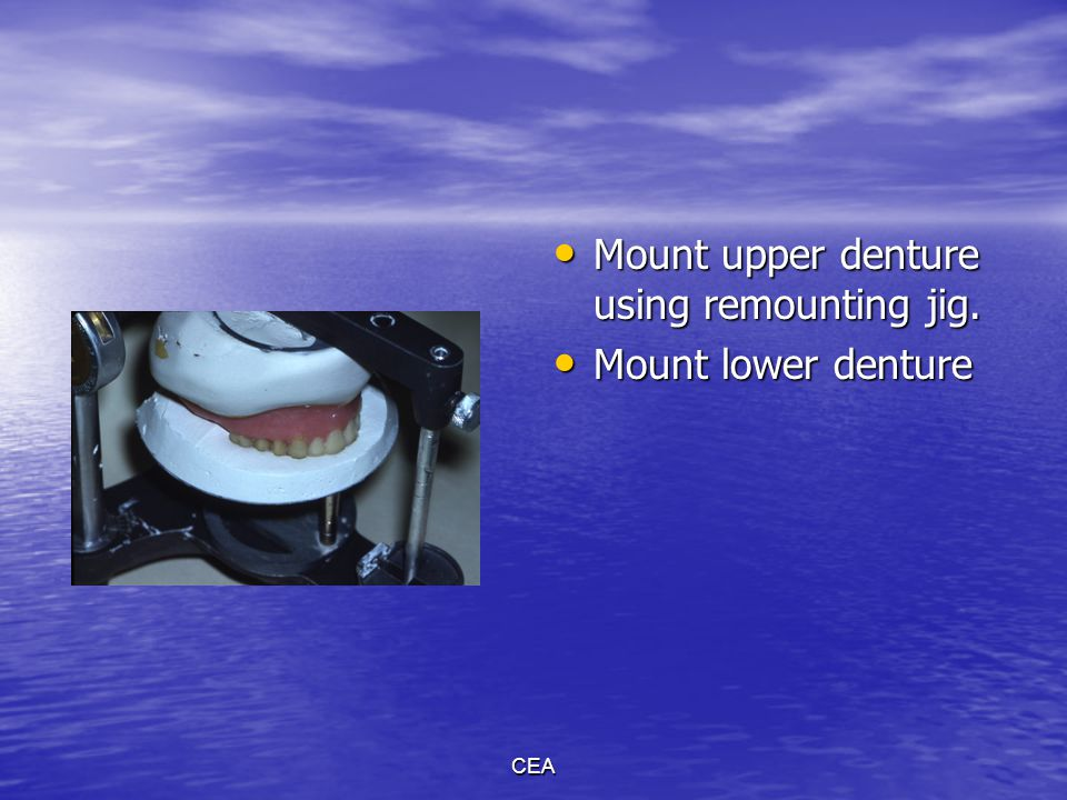 Mount upper denture using remounting jig. Mount lower denture