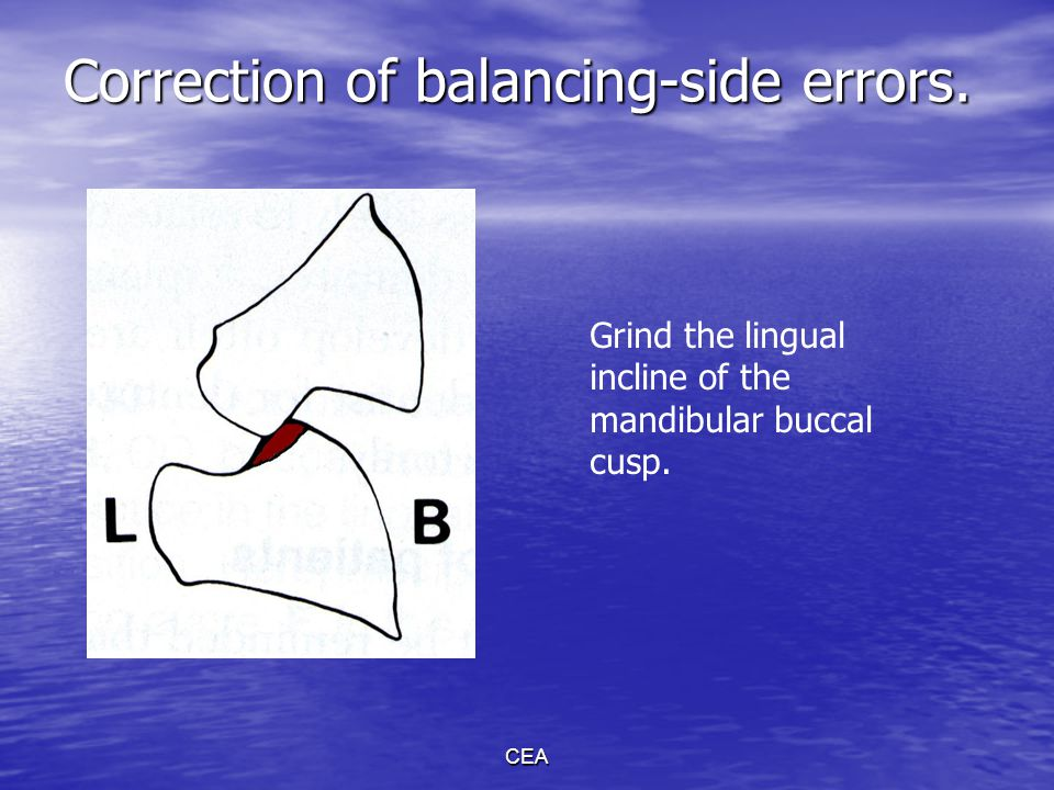 Correction of balancing-side errors.