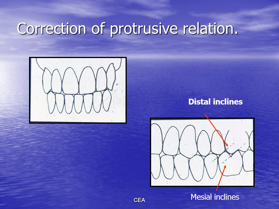Correction of protrusive relation.