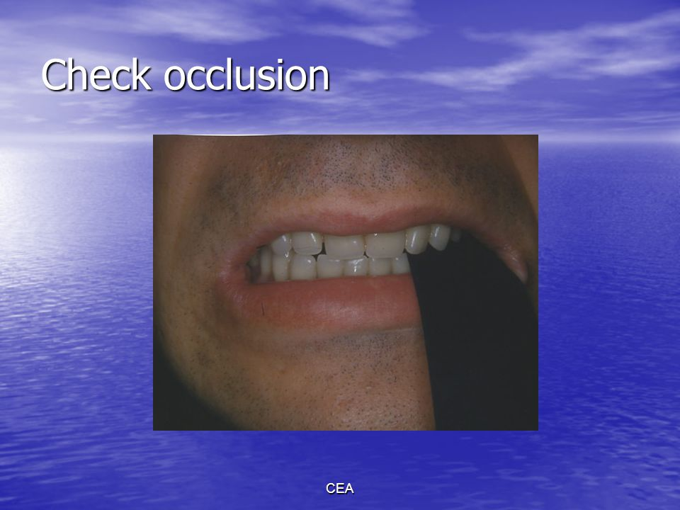 Check occlusion CEA