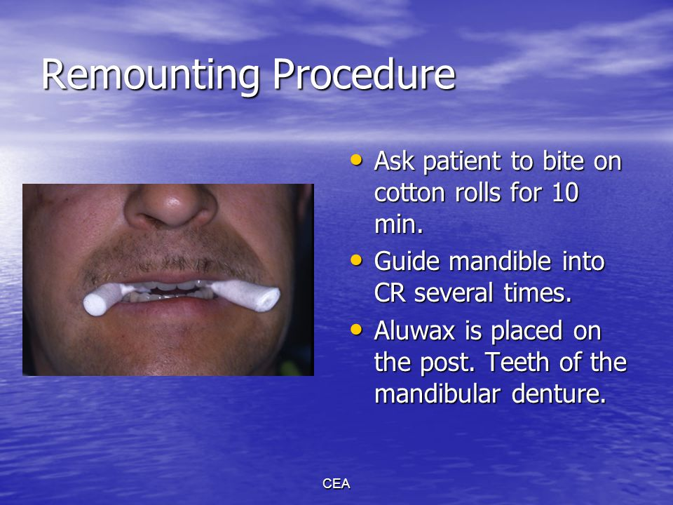 Remounting Procedure Ask patient to bite on cotton rolls for 10 min.