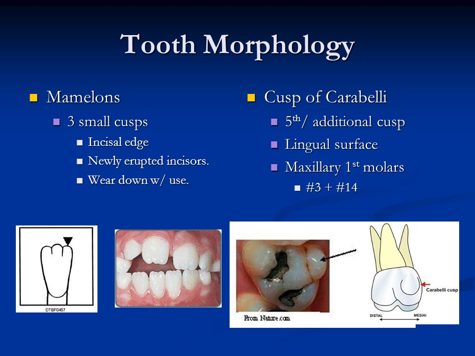 Tooth Morphology Mamelons Cusp of Carabelli 3 small cusps